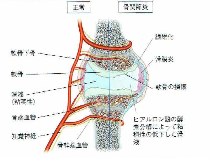 関節炎(変形性関節症)